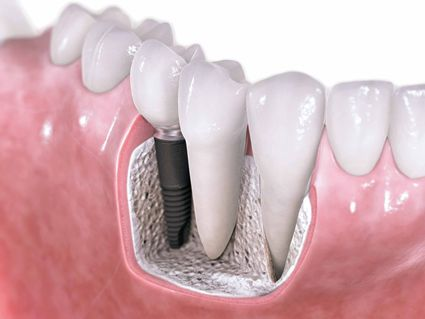 Dentonet - Sytuacja na rynku implantologicznym