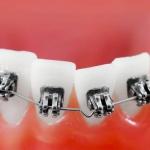 stłoczenia zębów - Dentonet.pl