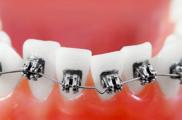 Stłoczenia zębów – w jaki sposób powstają?