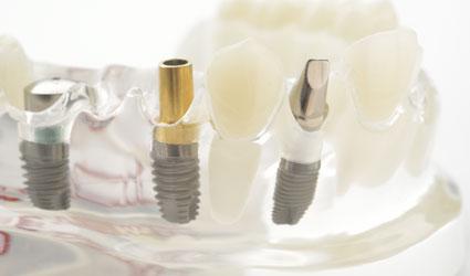 Jakie atuty powinien mieć system implantologiczny?