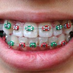 braces_col.jpg