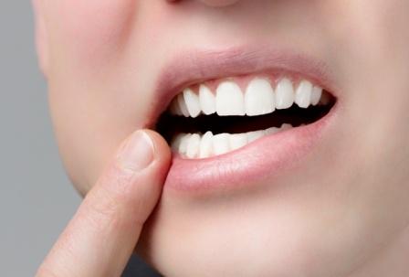 Chip w zębie?