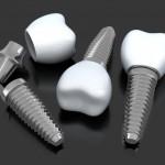 implanty_2.jpg