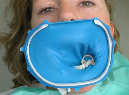 Dlaczego stomatolodzy używają koferdamu?
