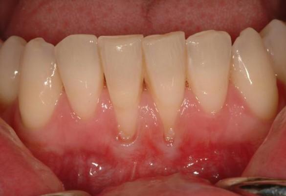 Czy parodontoza jest chorobą wyleczalną?