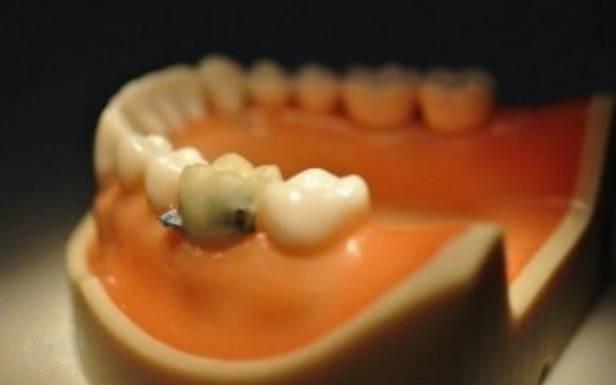 Sztuczny ząb – szpieg doskonały