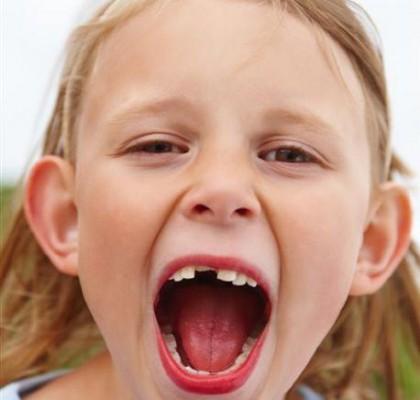 Anglia: Dentyści wyrywają zdrowe mleczaki!