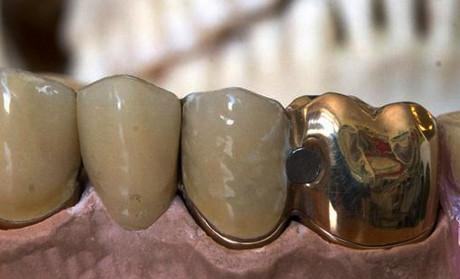 Historia chłopca, który urodził się ze złotym zębem