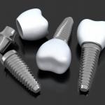 Przeciwwskazania do implantów zębowych - Dentonet.pl
