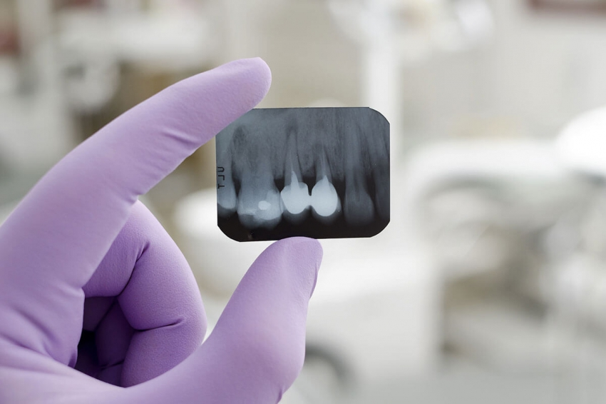 RTG zębów – jak przebiega i kiedy trzeba je wykonać?