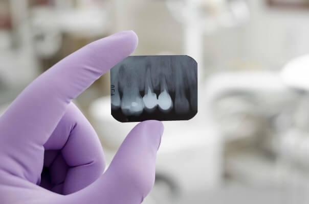 Czym jest kanał, a czym korzeń zęba?