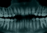 Jakie są wskazania do ekstrakcji zębów mądrości?