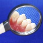 Dentonet - jak uniknąć parodontozy?