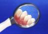 Profilaktyka parodontozy - tej chorobie można zapobiegać!