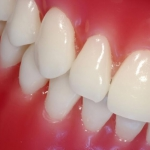 Dentonet - co jeść przy protezie zębowej