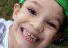 Skutki próchnicy zębów mlecznych - nie wolno ich lekceważyć!