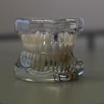 Dentonet - zastosowanie druku 3D w stomatologii