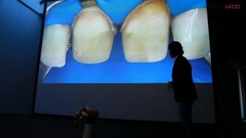 Przebarwienia po leczeniu endodontycznym