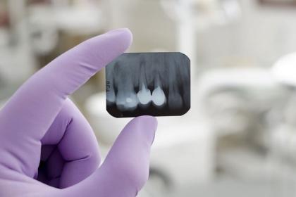 Badania rentgenowskie w stomatologii