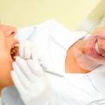 Dentonet - metody leczenia kserostomii