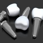 Dentonet - dlaczego implanty robi się z tytanu?