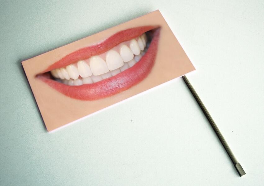 Wybielanie zębów nadwrażliwych – czy to możliwe?