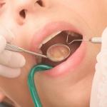 Na czym polega zatrucie zęba - Dentonet.pl