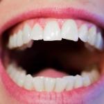 Choroby zębów - Dentonet.pl