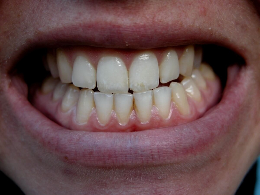USA: bakterie z jamy ustnej mogą wywoływać migrenę
