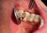 3 najczęstsze przyczyny próchnicy: zła higiena, zła dieta i unikanie dentysty