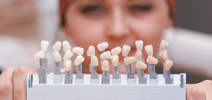 Wybielanie zębów – temat na czasie