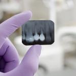 Zwichnięcie zęba