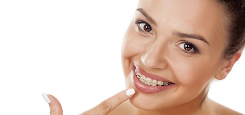 Ortodoncja bezekstrakcyjna pilnie poszukiwana