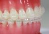 """Ortodoncja może być """"estetyczna"""" - nowoczesne aparaty dla pacjentów"""