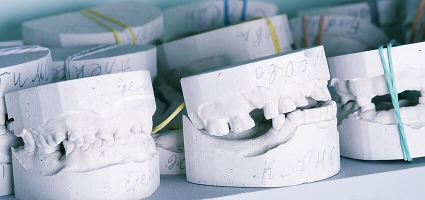 Elementy technik dentystycznych w pracy higienistki i asystentki