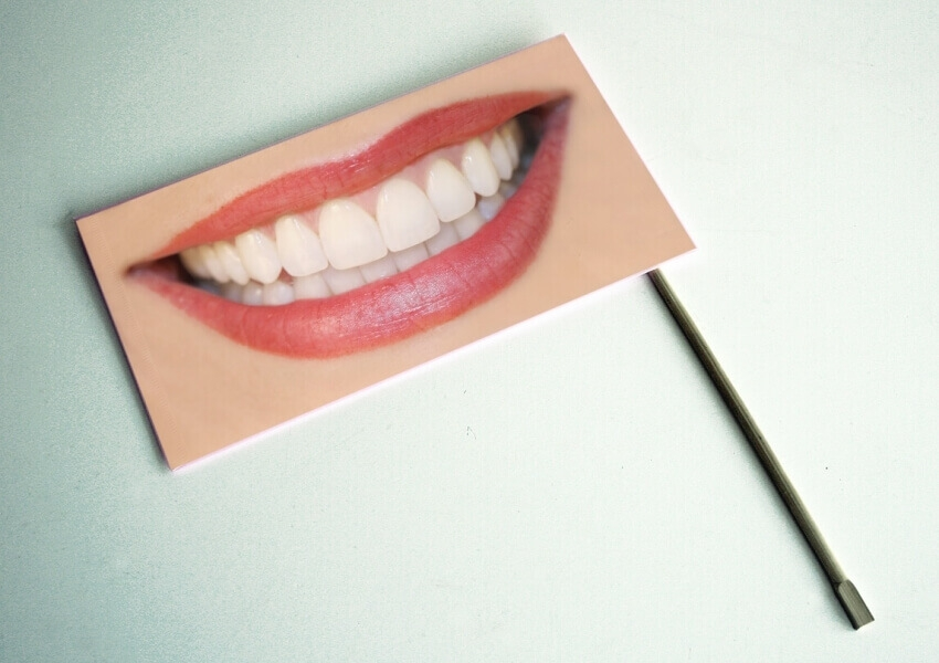 Wybielanie zębów – tylko u dentysty