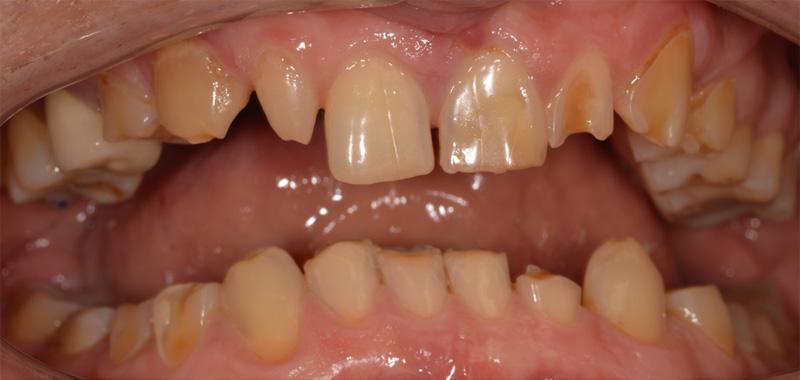 Kilka słów o remineralizacji, ubytkach próchnicowych, erozji i ścieraniu się zębów