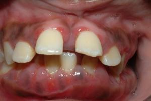 agressive-periodontitis