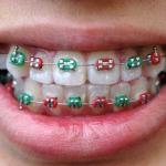Na mocy decyzji Światowej Federacji Ortodontów (WFO) 15 maja br. po raz pierwszy obchodzony będzie Światowy Dzień Zdrowia Ortodontycznego - Dentonet.pl