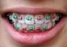 15 maja – Światowy Dzień Zdrowia Ortodontycznego