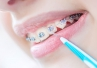 Zalecenia higienizacyjne - pacjent ortodontyczny