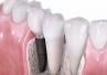 Zalecenia higienizacyjne - pacjent implantologiczny