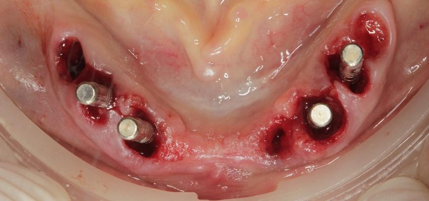 System oparty na czterech implantach – badania retrospektywne