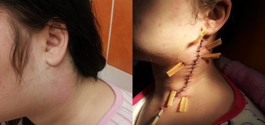Zębopochodne ropnie i ropowice szyi – poważny problem diagnostyczny