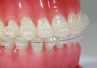 Kujawsko-pomorskie: 4 lata w kolejce do ortodonty
