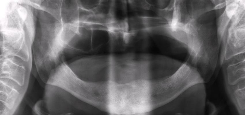 Rehabilitacja protetyczna po chirurgii w obrębie twarzoczaszki