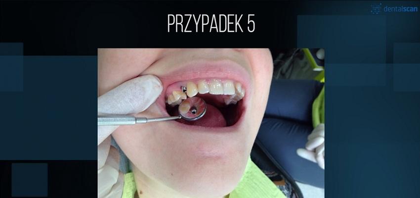 Cyfrowa stomatologia – Odcinek 3: Incepcja