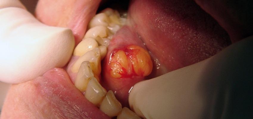 Tłuszczak dna jamy ustnej u 81-letniej kobiety  – opis przypadku