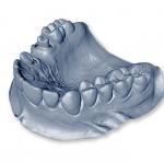 żuchwa 3D - Dentonet.pl