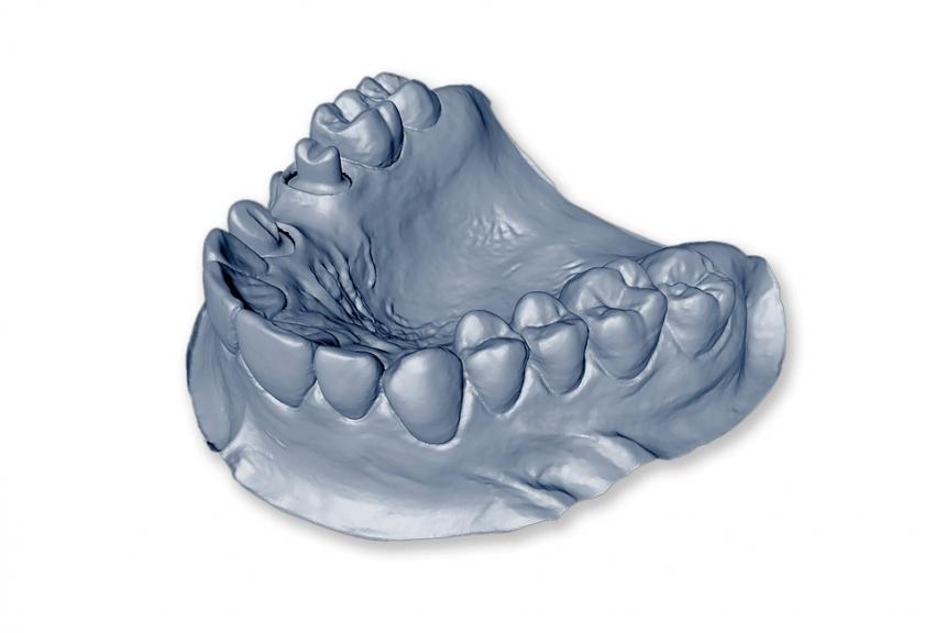 Rzeszów: żuchwa 3D zminimalizuje komplikacje operacyjne